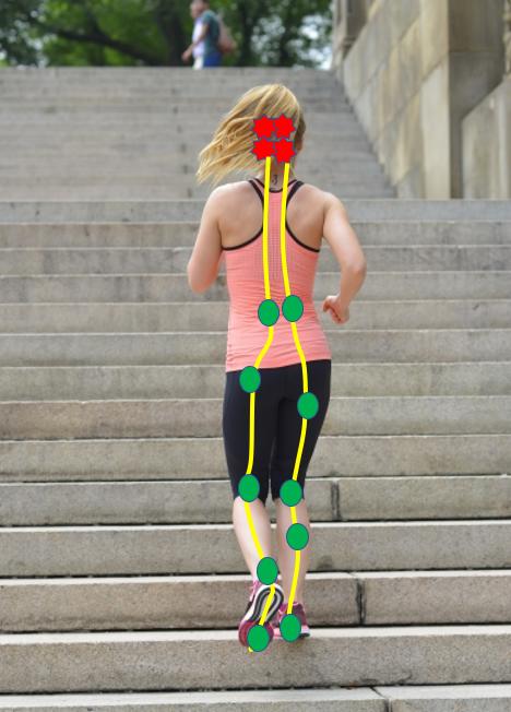 階段を上るときの頭痛